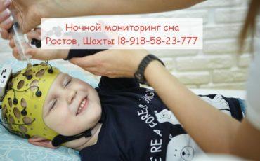 В Ростове ЭЭГ мониторинг